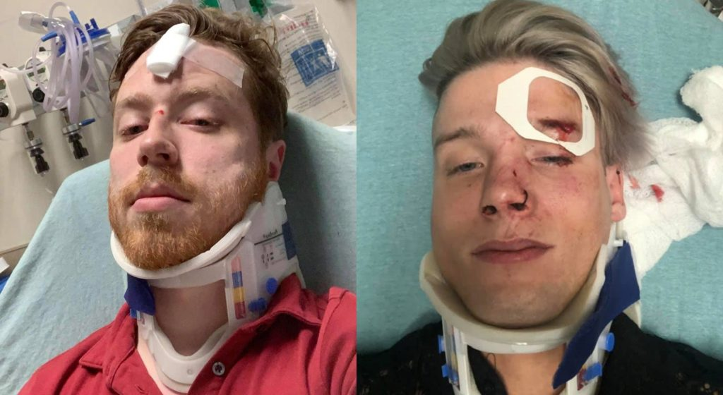 Texas gay couple Spencer Deehring and Tristan Perry were both hospitalised after the brutal anti-gay attack.