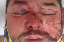Phoenix resident Cesar Marin says he was attacked by a mob of 10 people.