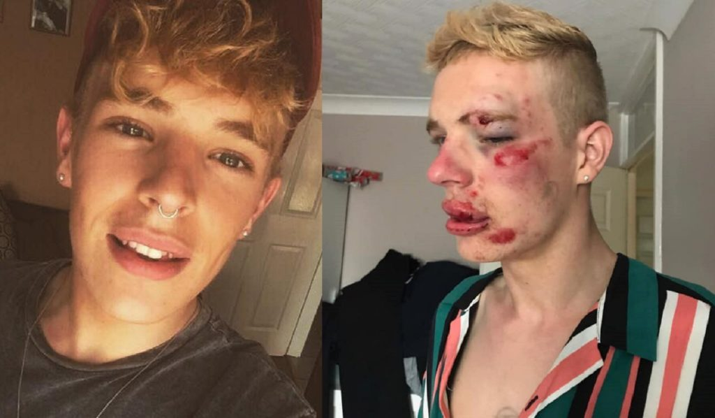 Ryan Williams was beaten up for being gay