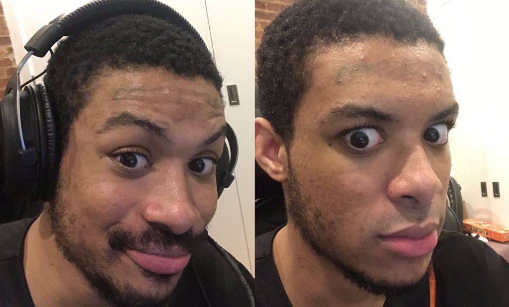 SonicFox shaved his moustache after raising $20,000 for charity