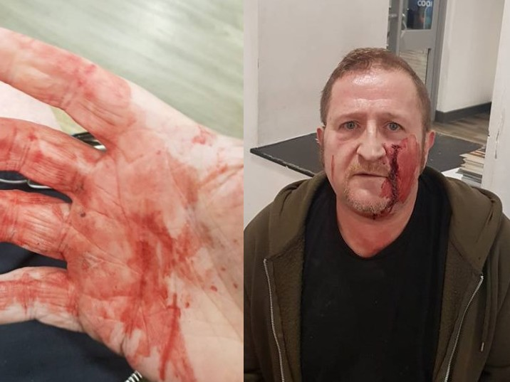 Gay man who meant to meet someone from Grindr ambushed and attacked by teen gang with hammers in hate crime