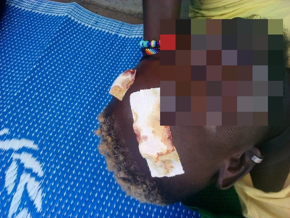 A trans man was brutally battered by a group of locals who entered the camp, a witness has claimed. (Facebook)