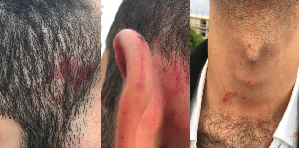 Hotel worker brutally assaulted by colleague in vile homophobic attack