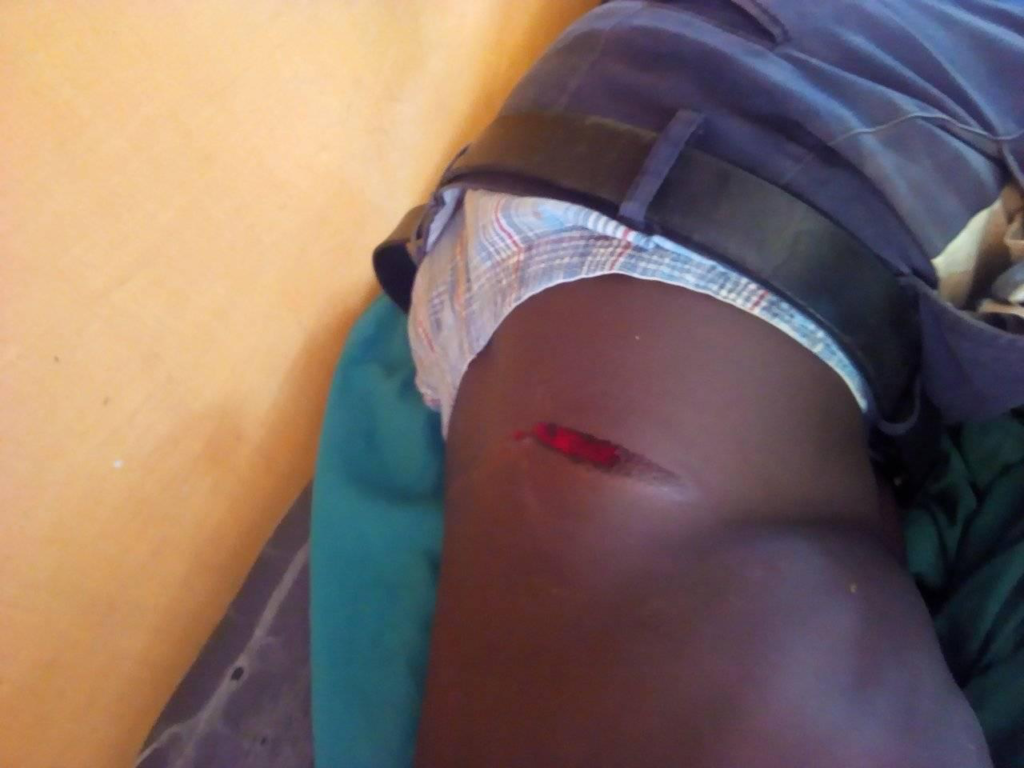 A trans protester was allegedly attacked by police, suffering a wound on his lower right torso as a result. (Supplied)