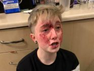 Charlie Graham, 20, was jumped by two homophobic individuals in Sunderland, England. (Michelle Storey/Facebook)