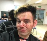 Lee Brobson bravely stood up for his pals before being brutally beaten up by two men. (Facebook)