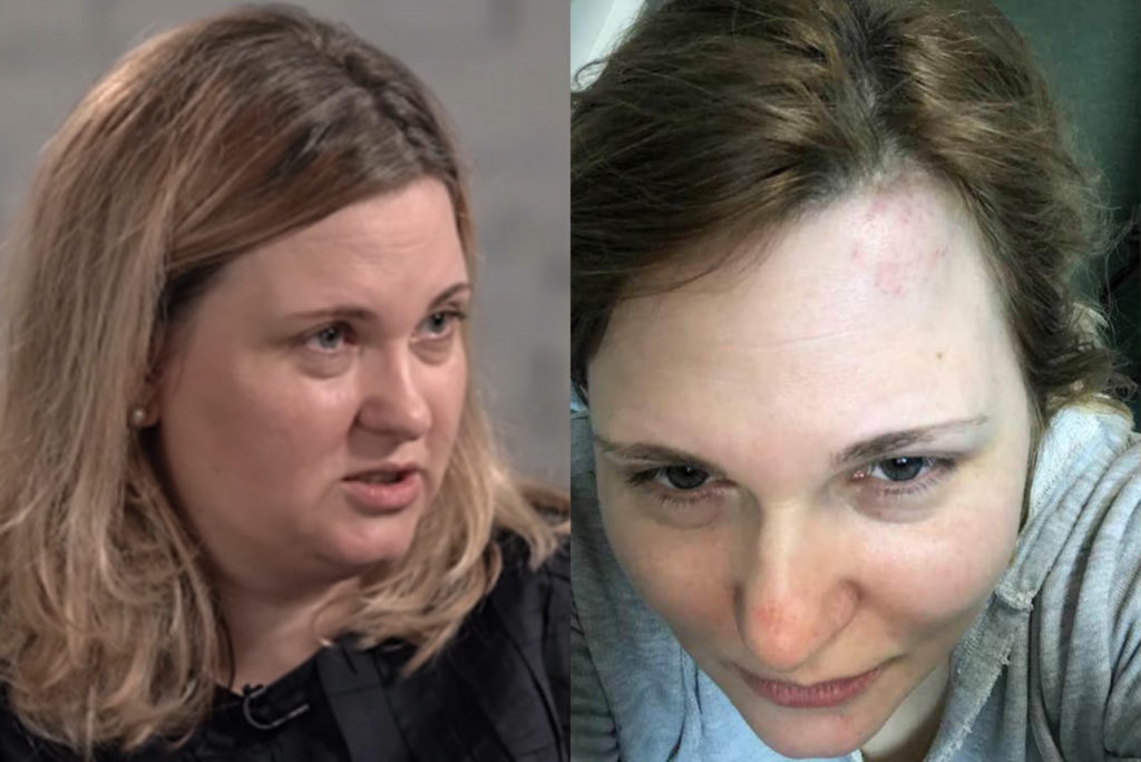 Novaya Gazeta reporter Elena Milashina, who helped expose the gay purge that pelted Chechnya, was attacked. (Screen capture via The Moscow Times/Facebook)
