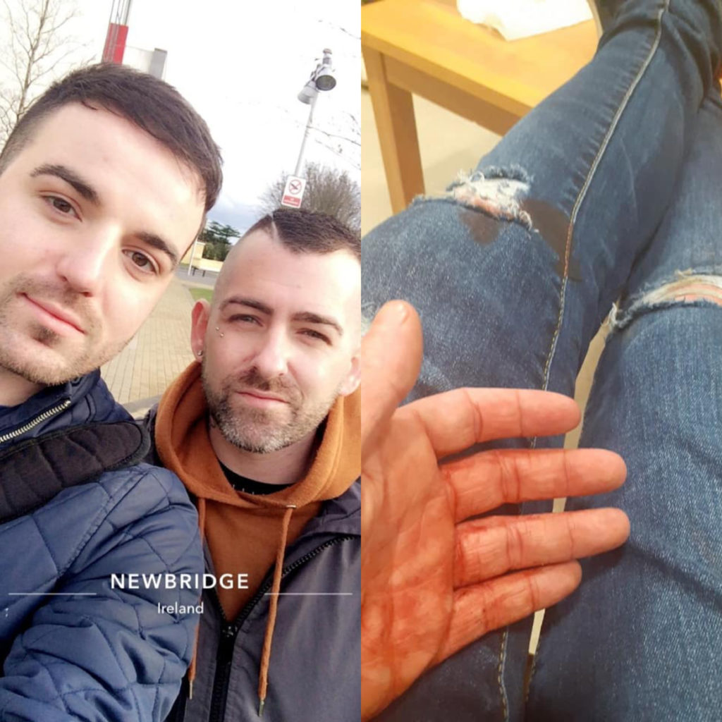 Teen boy arrested over 'homophobic' assault that saw gay couple brutally beaten and stabbed