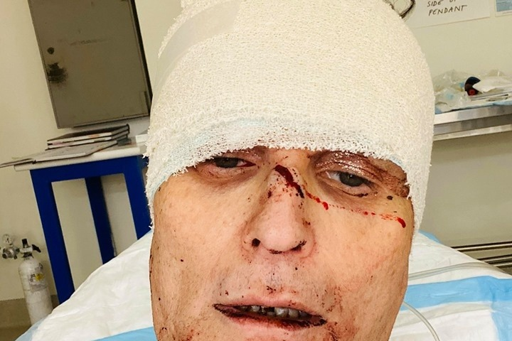 Getting prepped and preened for Mardi Gras, what could have been a day of fun for Joseph Stanislav ended in horror as two men brutally attacked him in his Sydney home. (Jim Morris/GoFundMe)