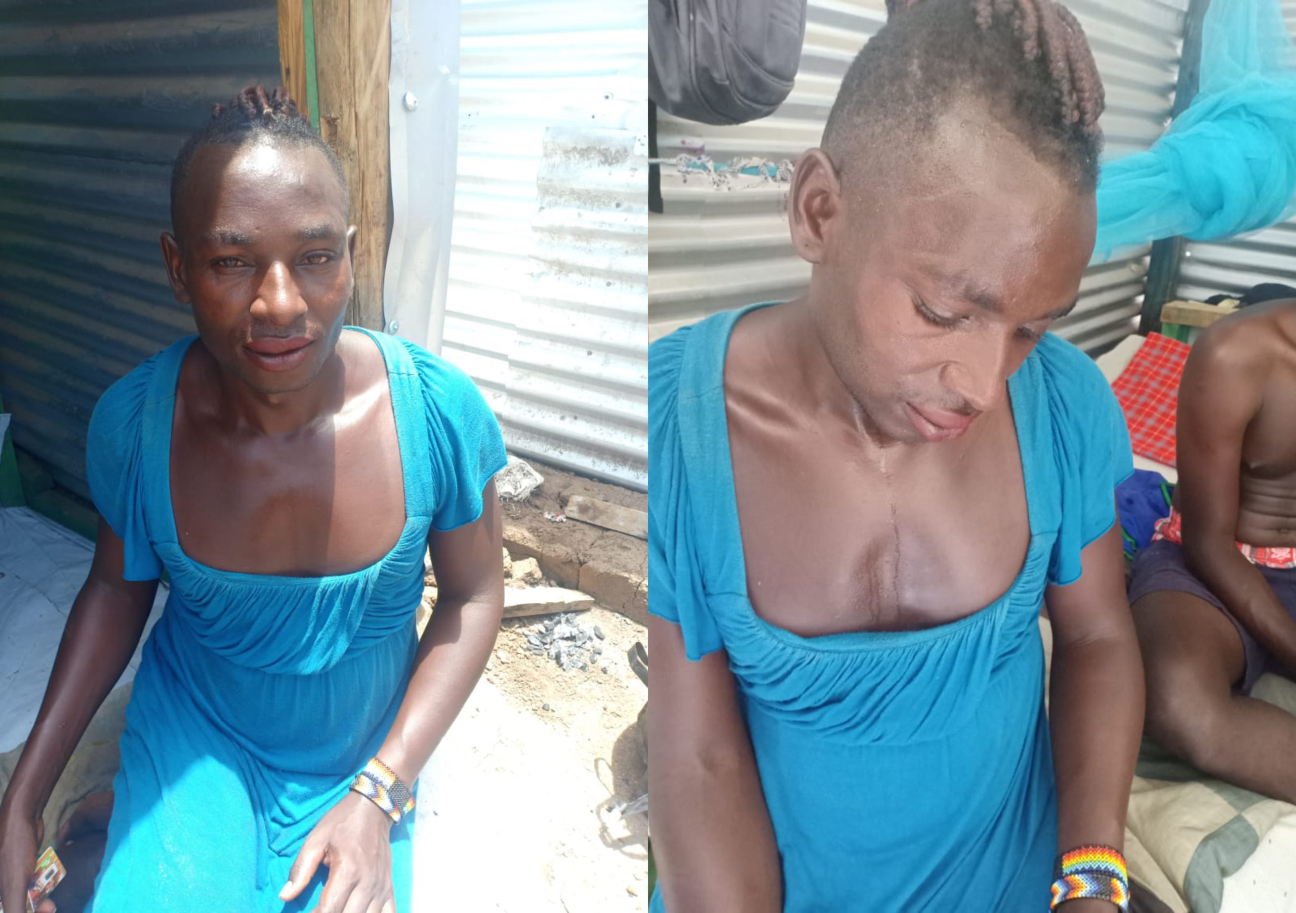Stephen Sebuuma, a trans non-binary refugee in the Kakuma refugee camp, was battered by a group of 10 transphobes with sticks and stones. (Stephen Sebuuma)