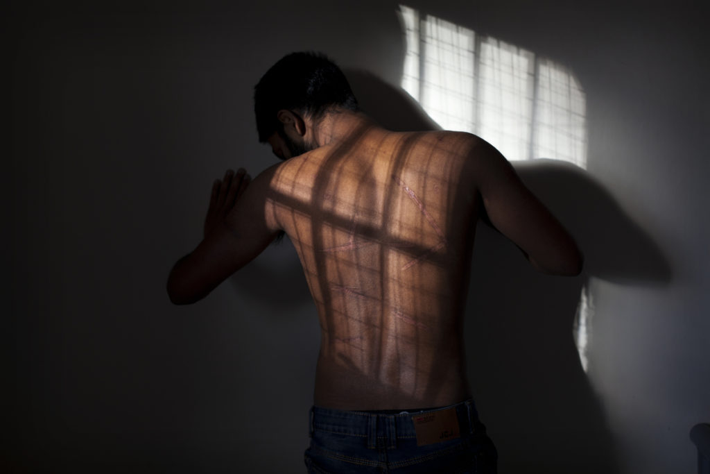 A man's back covered in scars