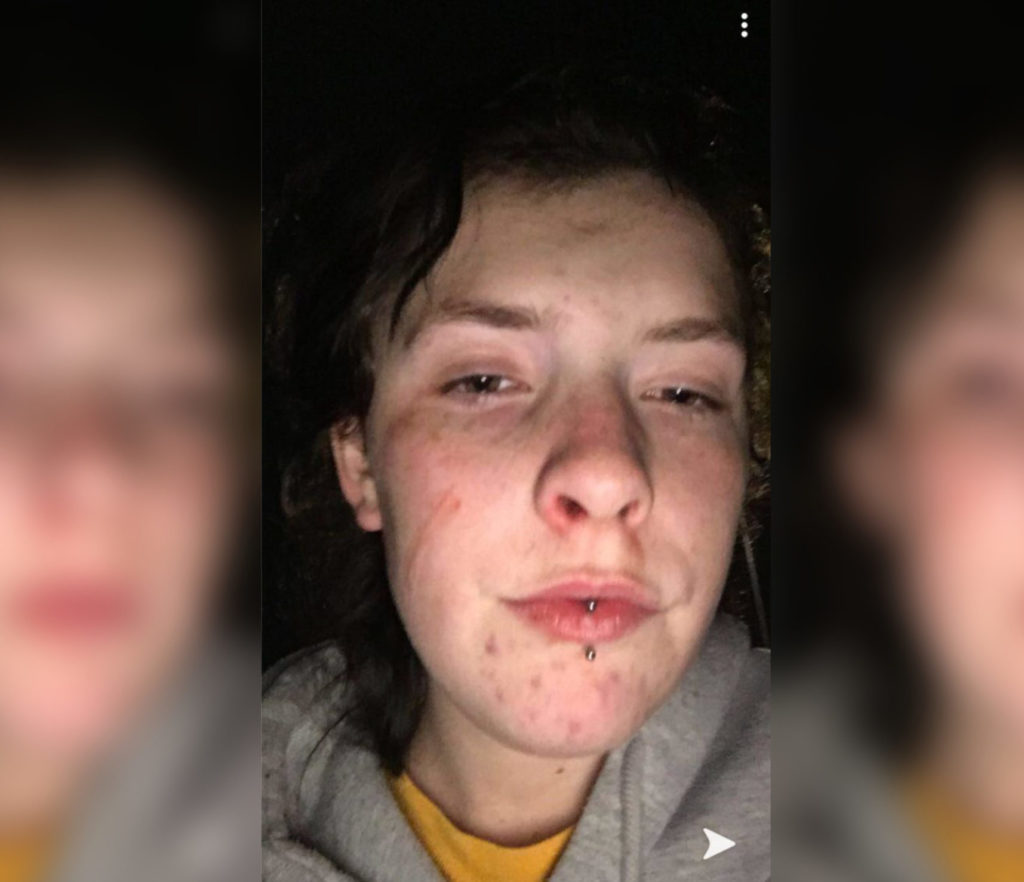 Queer 16-year-old viscously beaten by thugs in vile homophobic attack