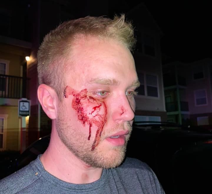 Christian Council: Thugs beat gay man unconscious while screaming slurs