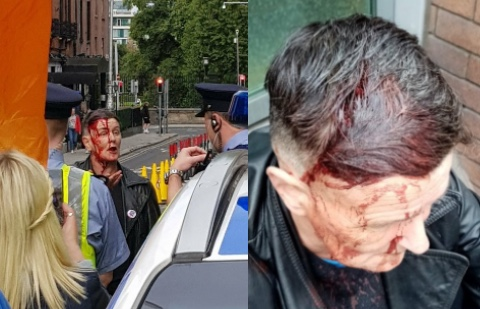 Man who violently beat trailblazing LGBT+ activist at a far-right rally faces charges