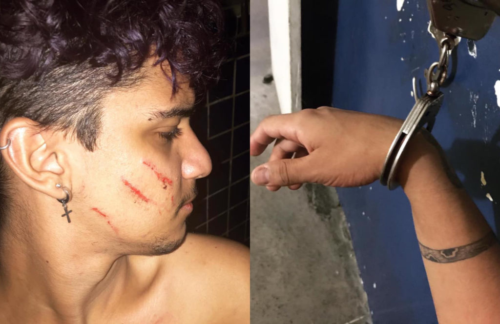 Lorran Oliveira, a 21-year-old photographer, was beaten with a broomstick by a neighbour. (Facebook)