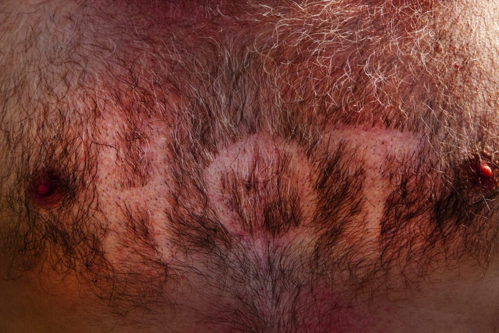 A hairy, male chest with the word HOT shaved into it, Glastonbury Festival 2010.