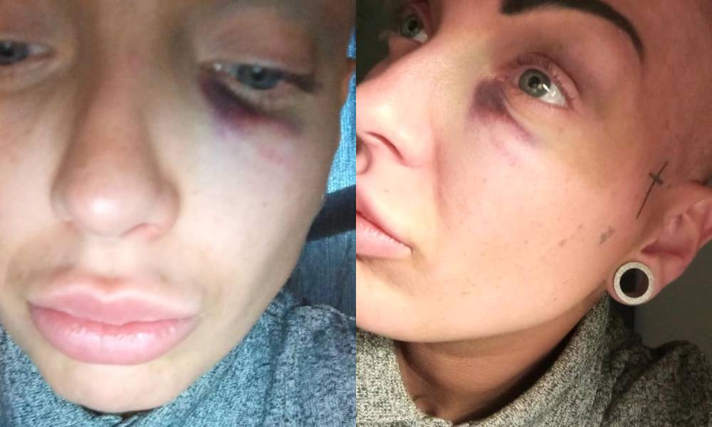 Mum beaten 'black and blue' with crowbar in homophobic pub attack