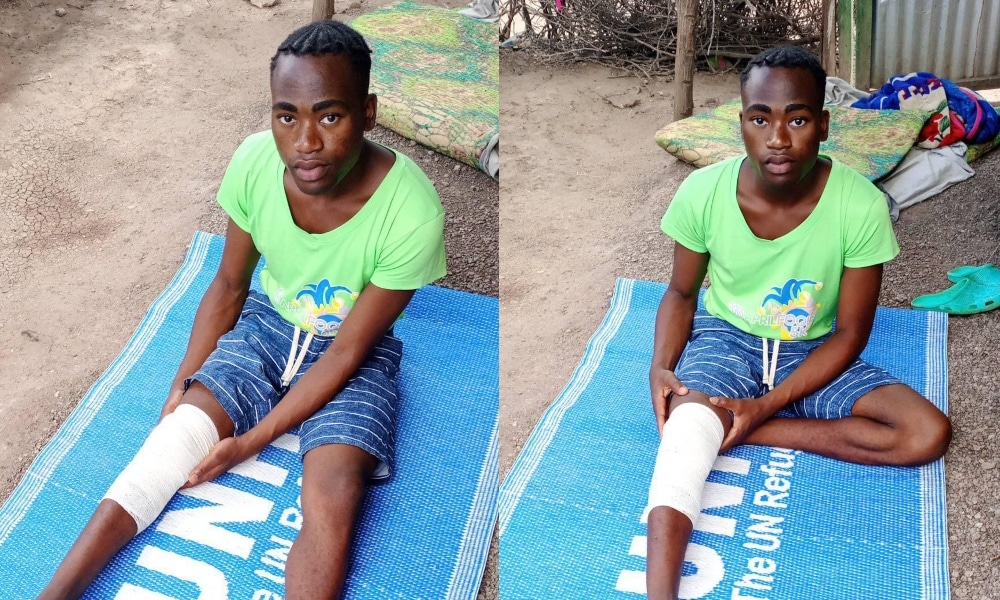 Canary Murungi sits on a UNCHR mat with his knee bandaged