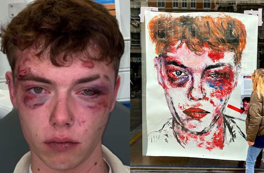 Josh Ormrod after he was attacked, and his portrait in Cardiff city centre