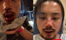 Side-by-side of Yang Wu, his mouth and nose bleeding