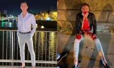 Irish Olympic athlete Jack Woolley before and after the attack