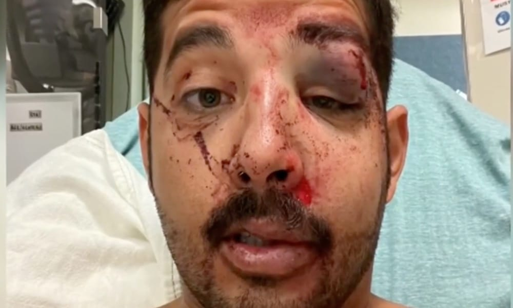 Two men knock gay man unconscious in violent hate crime: 'You never expect it to happen to you'