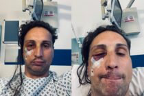 Lóránt-Árpád Tompos pictured in hospital after he was attacked in a homophobic hate crime